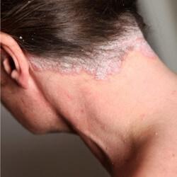 Łuszczyca głowy - zdjęcie